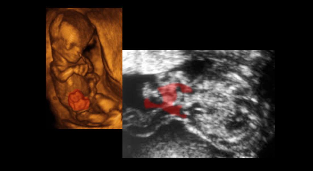 Herniácia črevných kľučiek vpravo od miesta vstupu pupočnej šnúry, plod v 12. tg